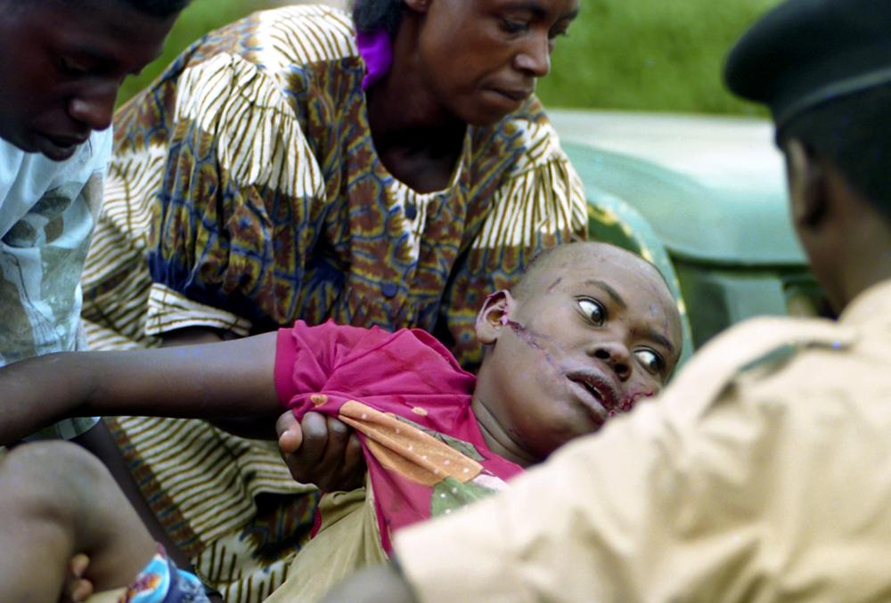 Rwanda, Kigali machete victim
